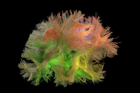 brain signal patterns
