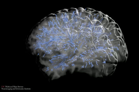 brain mapping perivascular space
