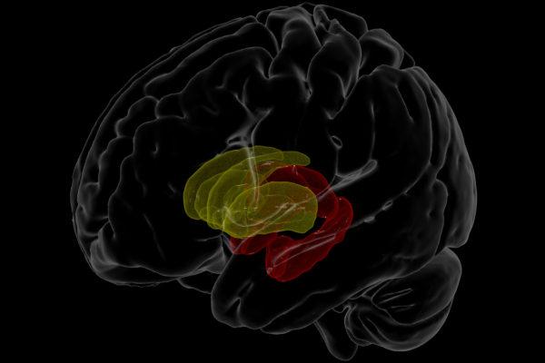 HIV brain scan