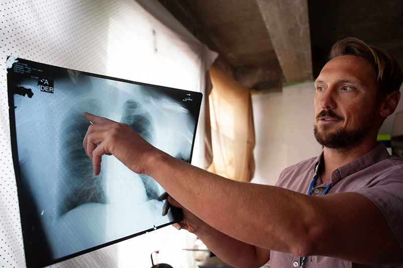 Todd Schneberk in a short-sleeve pink button-down shirt pointing to the collarbone on a chest X-ray illuminated against a window