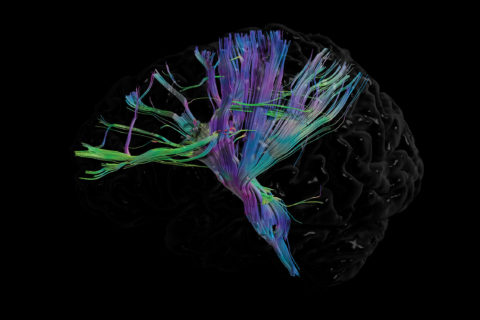 A scan of a human brain with long, thin cord-like shapes illuminated in colorful purple, blue and green patterns.