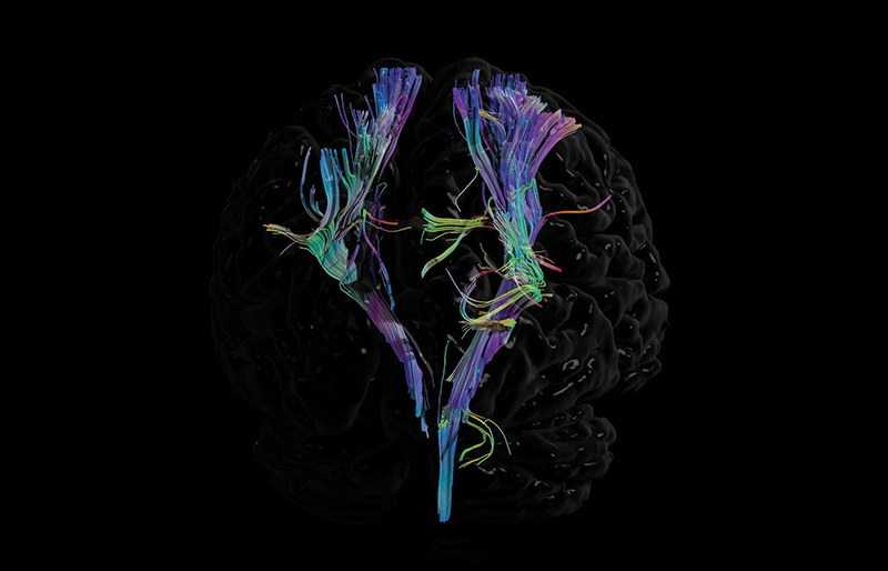Advances in medical imaging include this brain scan