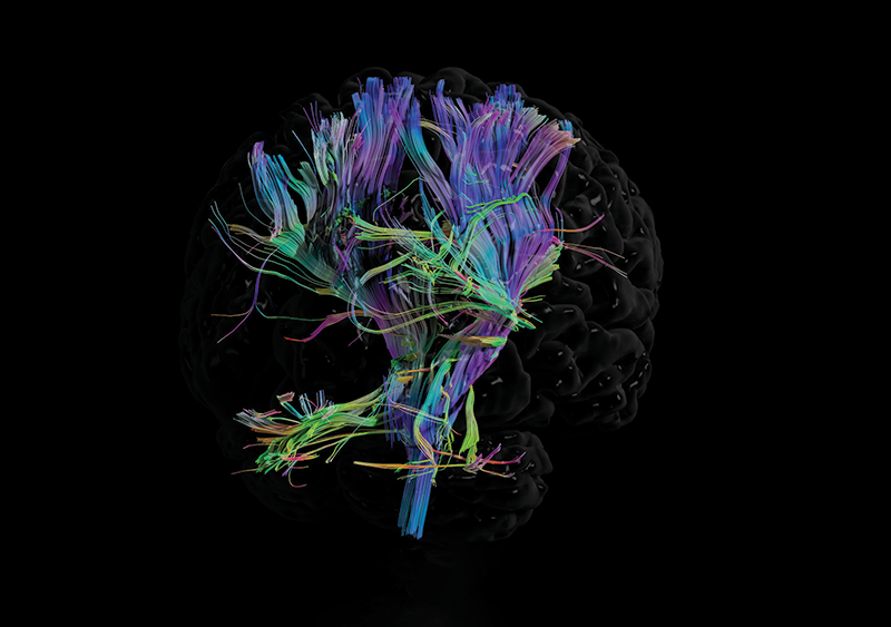Tractography an advanced form of medical imaging