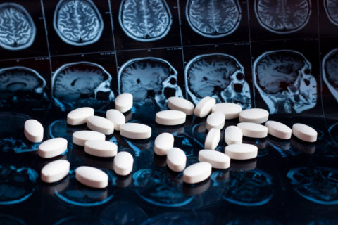 new potential Alzheimer's treatment target