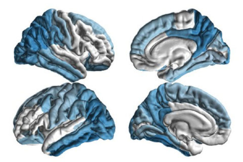 Pattern of brain tissue damage in Parkinson's disease patients
