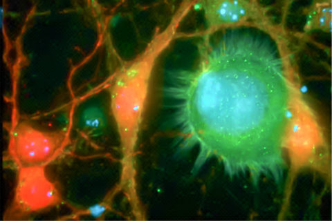 Cancer cells and brain cells